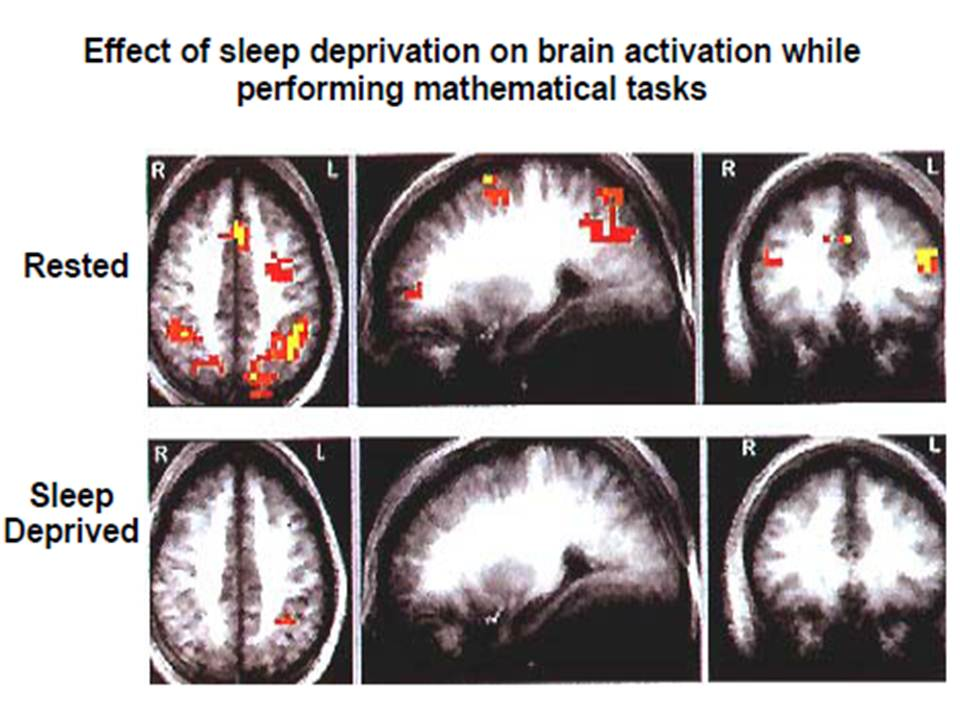 professor-foster-effect-of-sleep-deprivation-on-brain-tasks